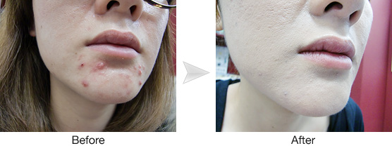 吹き出物 顎 周り 口周りのニキビの原因と治し方!吹き出物が治らない時のケア方法